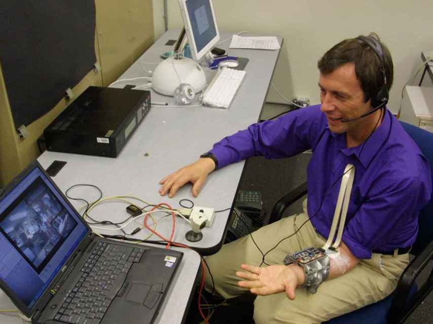 El profesor Kevin Warwick lleva un implante en el sistema nervioso.