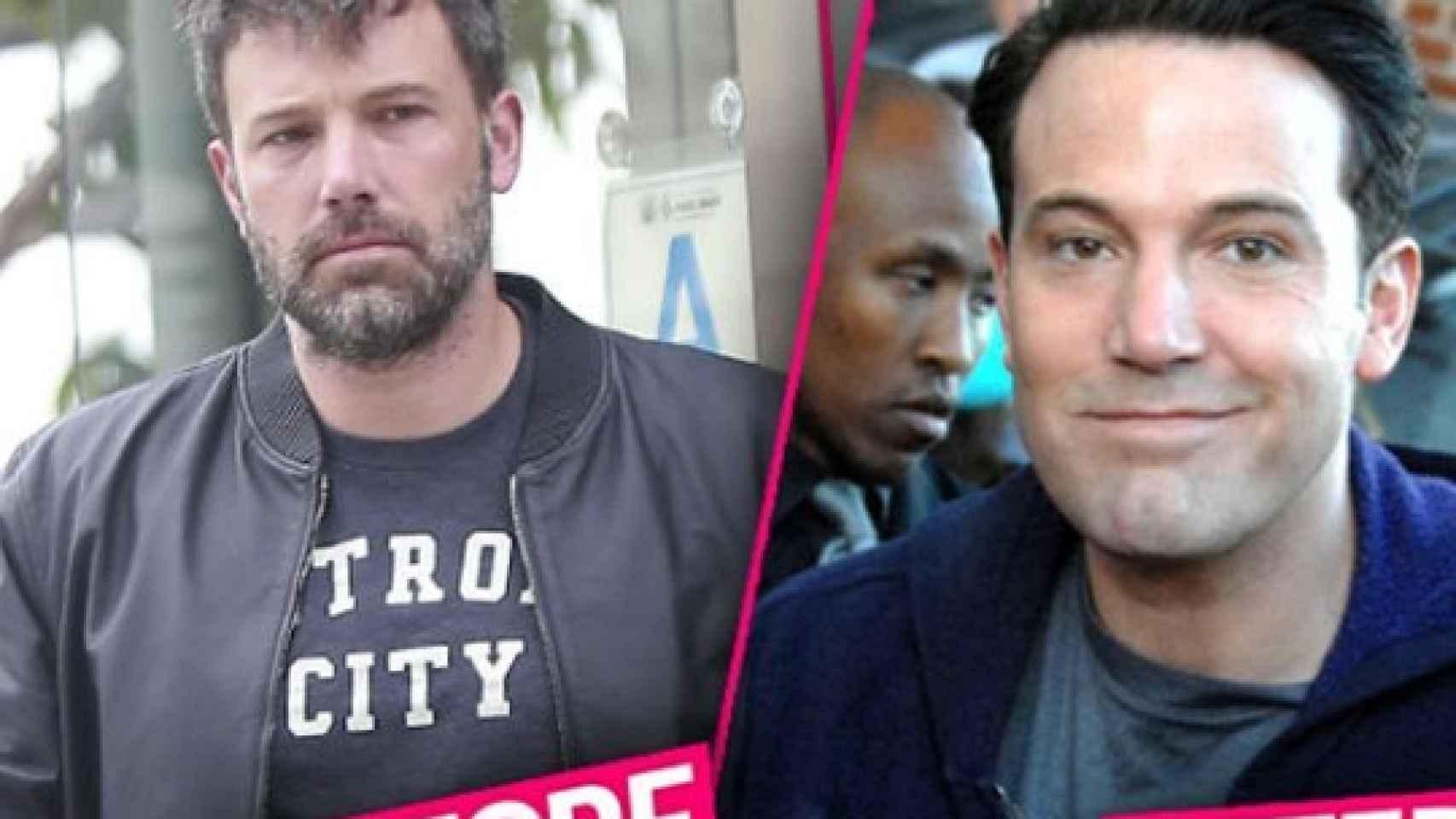 Imágenes del resultado del actor publicadas por Radar Online