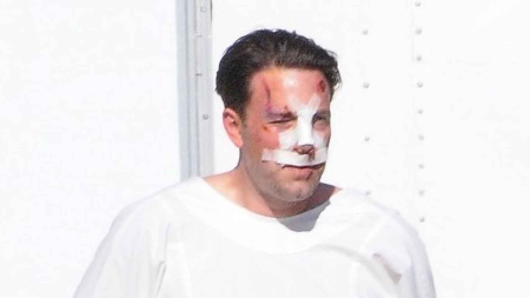 Ben Affleck durante el rodaje de Live By Night mientras luce vendaje quirúrgico