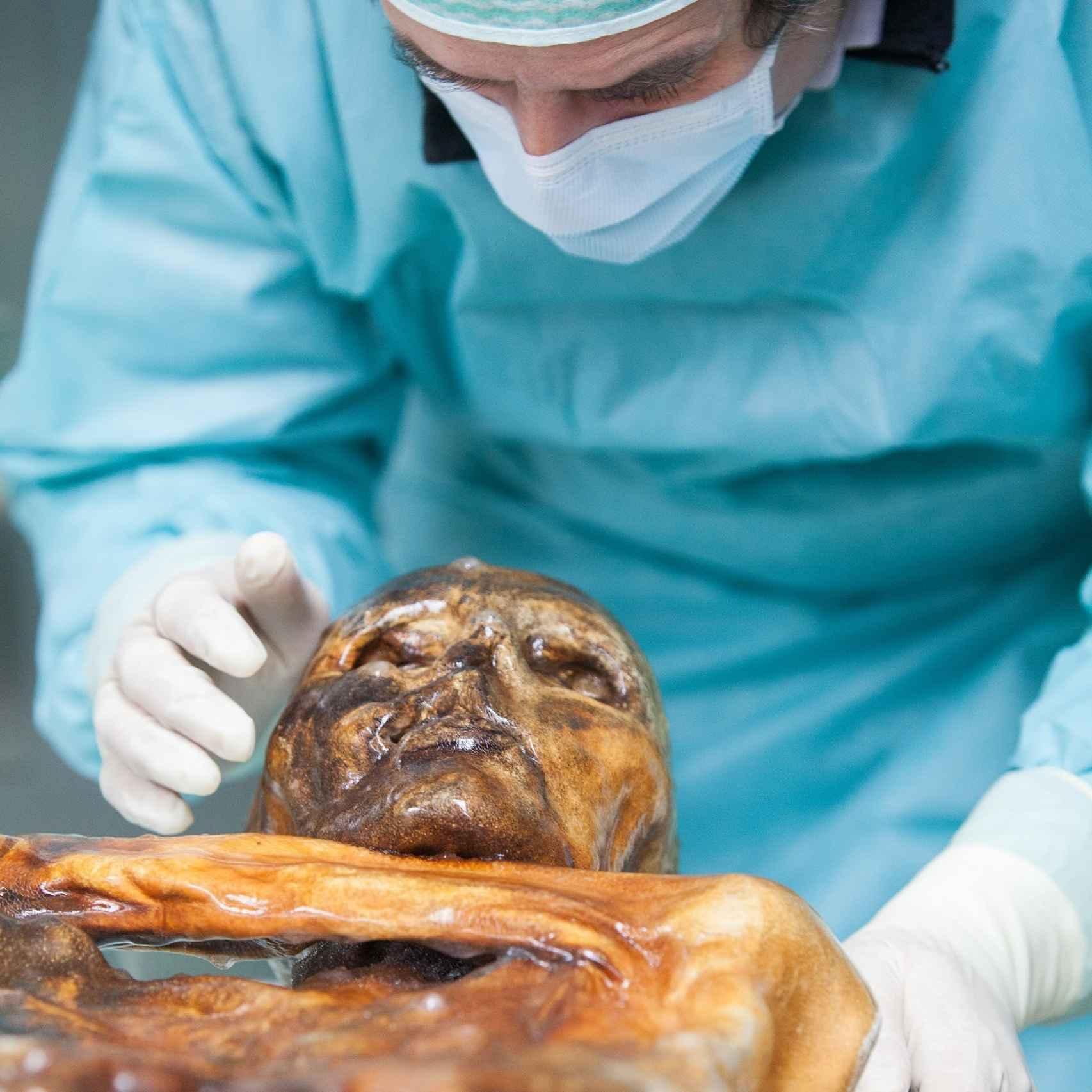 Investigador trabaja con la momia hallada en los Alpes.