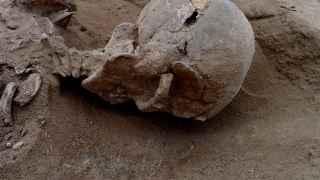 Detalle del cráneo fracturado de uno de los esqueletos hallados en Nataruk.