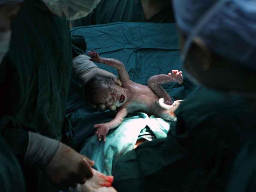 Un niño nacido por cesárea en un hospital chino.
