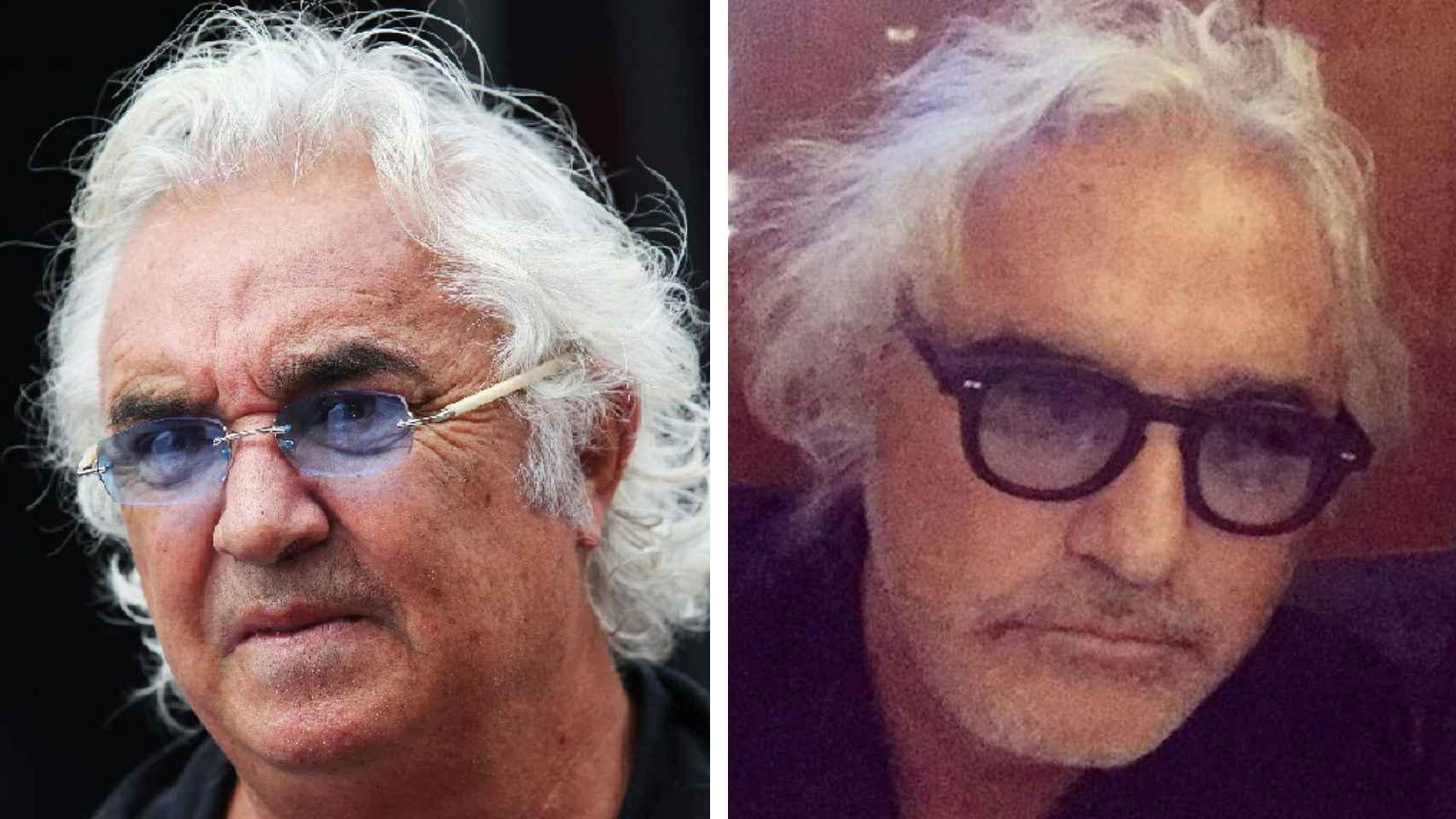 Flavio Briatore antes de operarse y después.