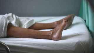 Las piernas de una paciente con Guillain-Barre.