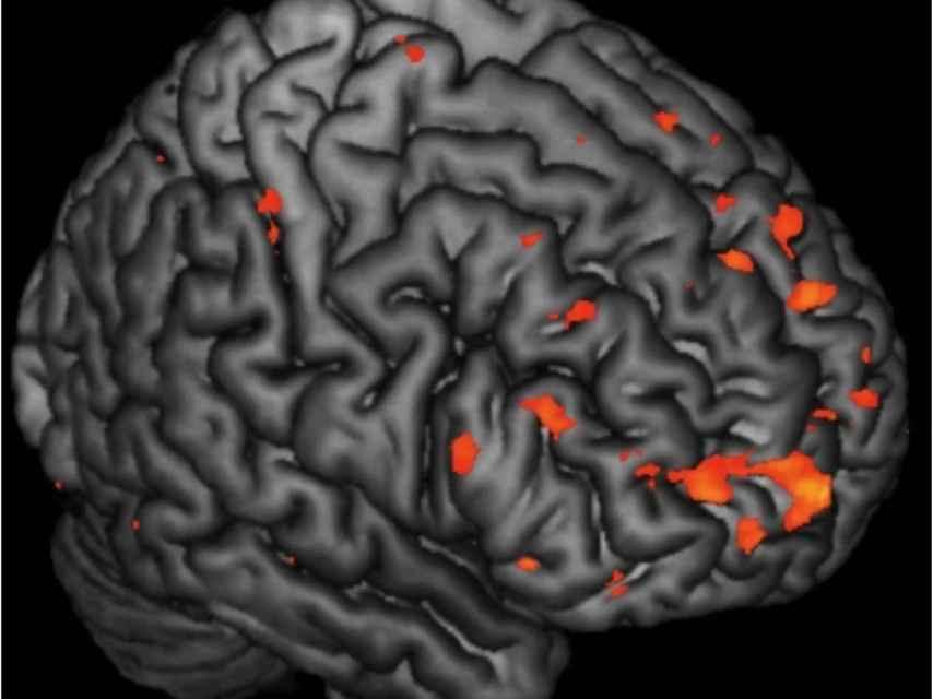 Anomalías en el cerebro de familias de esquizofrenicos.
