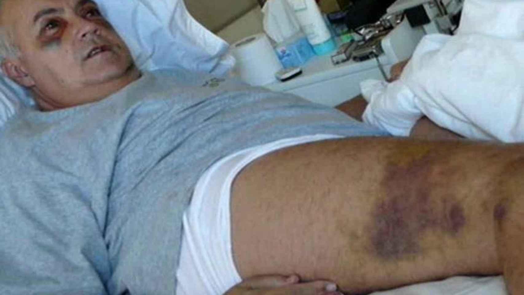 Moreno tuvo que ser hospitalizado varios días por la gravedad de las lesiones