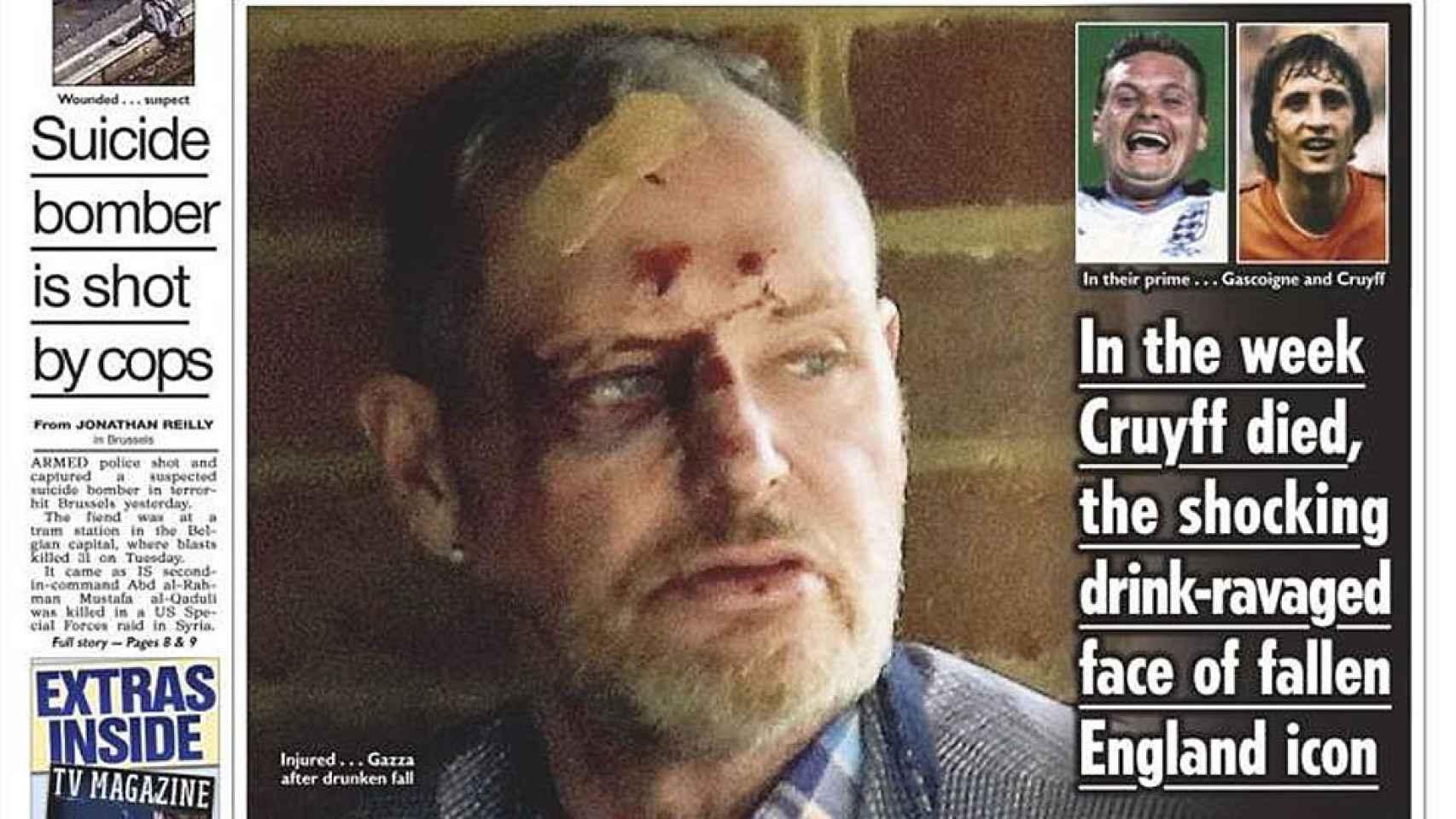Paul Gascoigne deambula borracho y ensangrentado por la calle