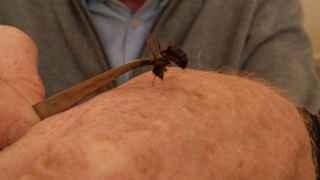 Las picaduras de abeja se utilizan en tratamientos para aliviar el dolor