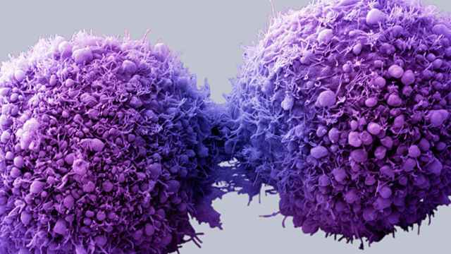 Metástasis de células cancerígenas.