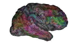 ¿Dónde pone el cerebro las palabras que oímos?