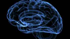Imagen de un cerebro realizada a través de una prueba diagnóstica.