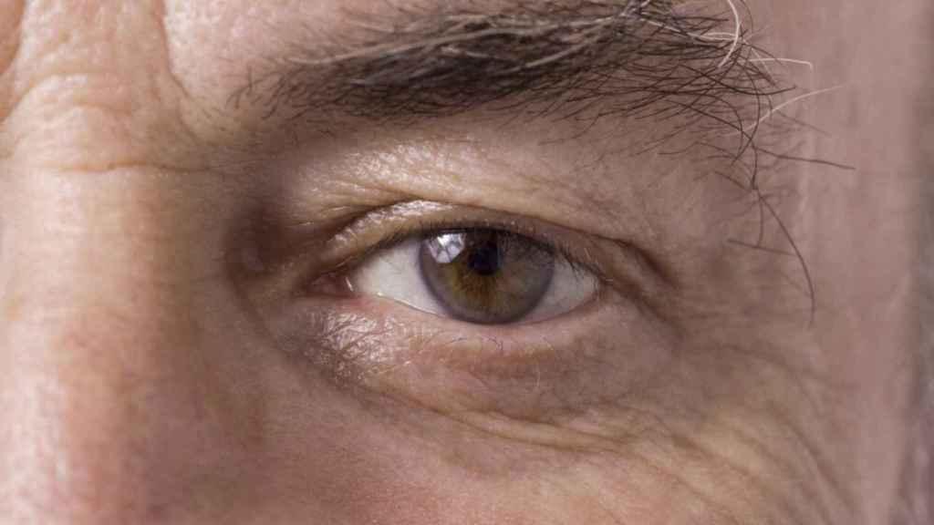 degeneración ocular