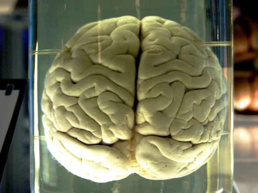Cerebro de un chimpancé en el Museo de Ciencia de Londres.