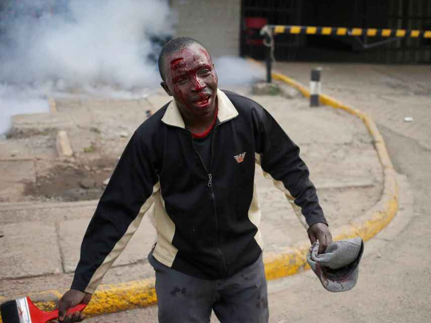 Uno de los heridos en la manifestación de Nairobi