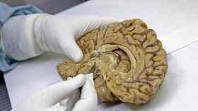 tejido_cerebral