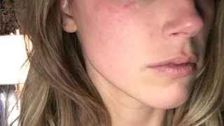 El álbum de Amberd Heard con la cara magullada