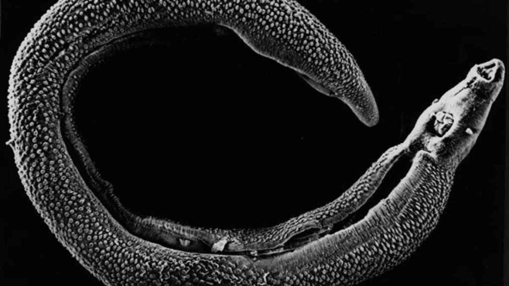 schistosoma_mansoni