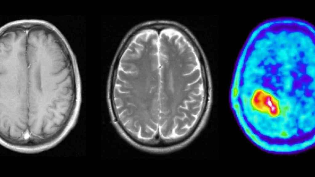 Una prueba diagnóstica muestra un tumor cerebral.