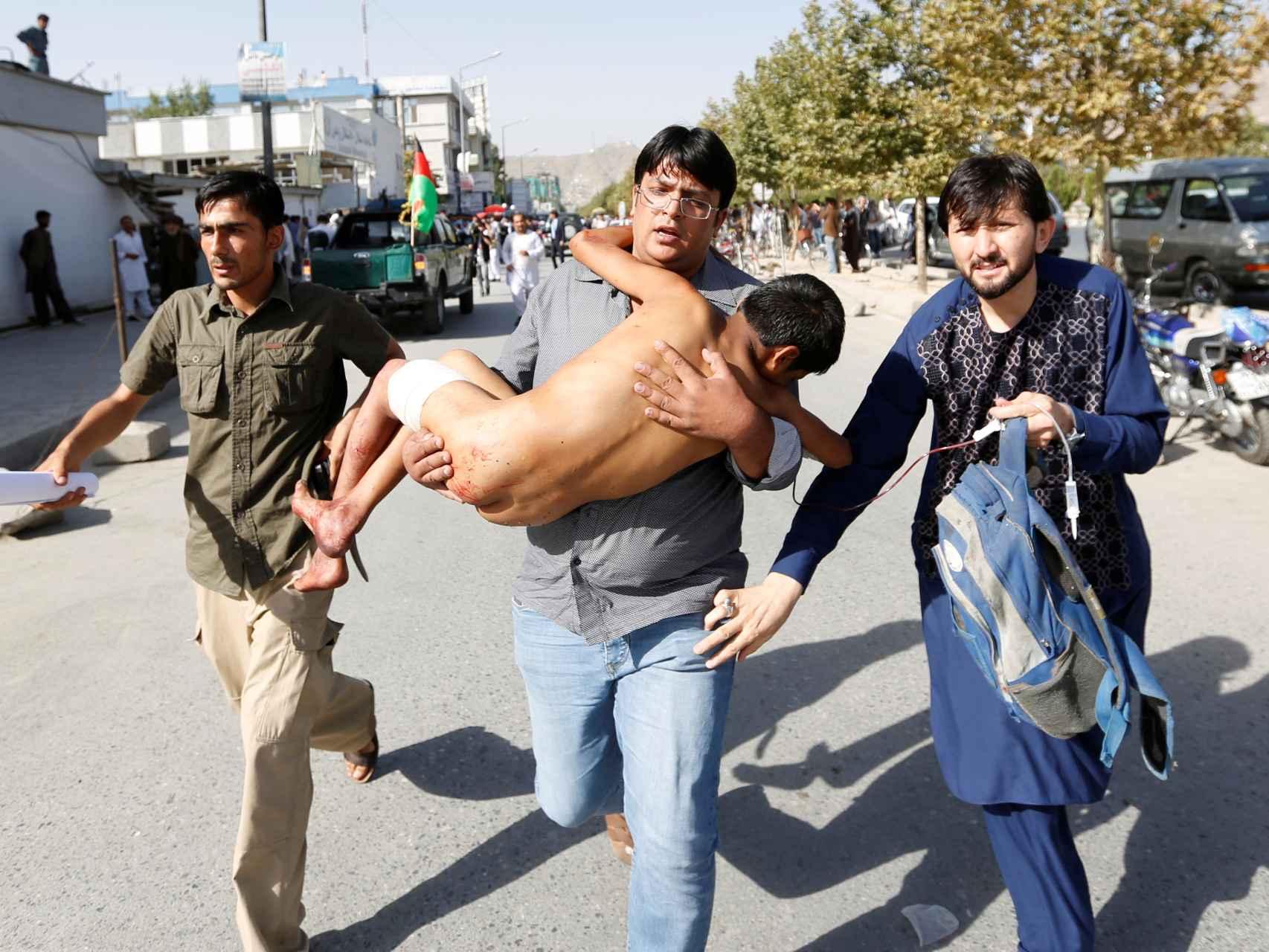 Trasladan a un niño herido en el atentado de Estado Islámico en Kabul este 23 de julio.