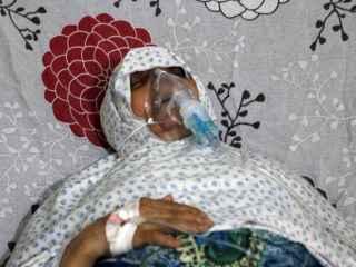 Una mujer respira con una máscara de oxígeno en un hospital de Alepo tras un posible ataque de gas cloro.