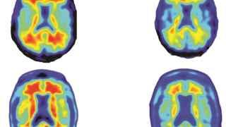 A la izquierda, cerebros sin tratar. A la derecha, tratados.