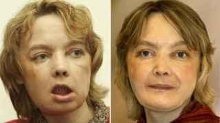 Isabelle Dinoire, la primera mujer en recibir un trasplante de cara.