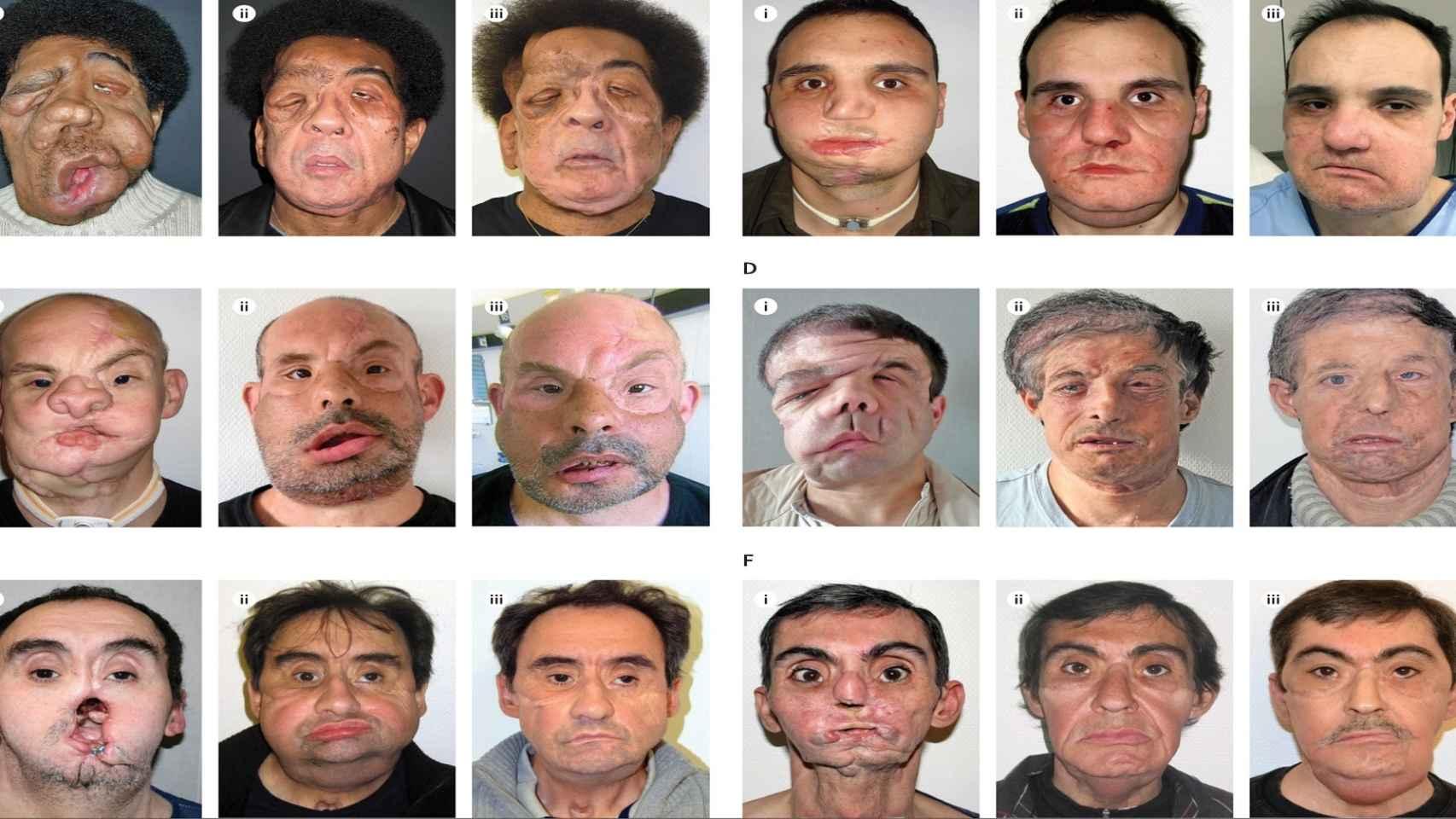 Algunos ejemplos de trasplantes de cara