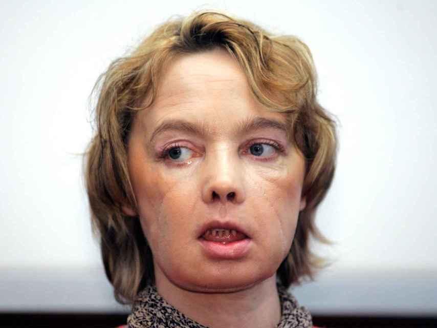 Isabelle Dinoire, un año después del trasplante