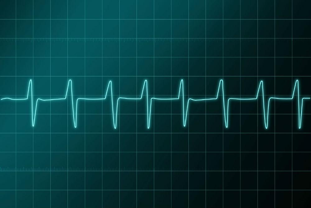 ritmo_cardiaco