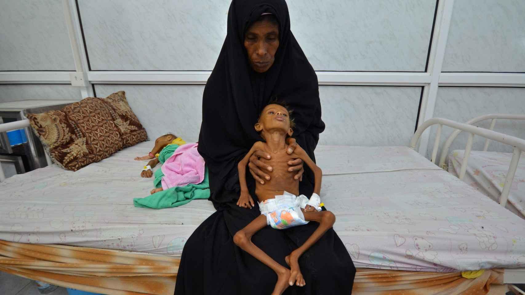 La madre de Salem sujeta a su pequeño de seis años en el hospital donde trata de recuperarse de la malnutrición.