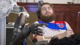 Un paciente prueba la electroestimulación.