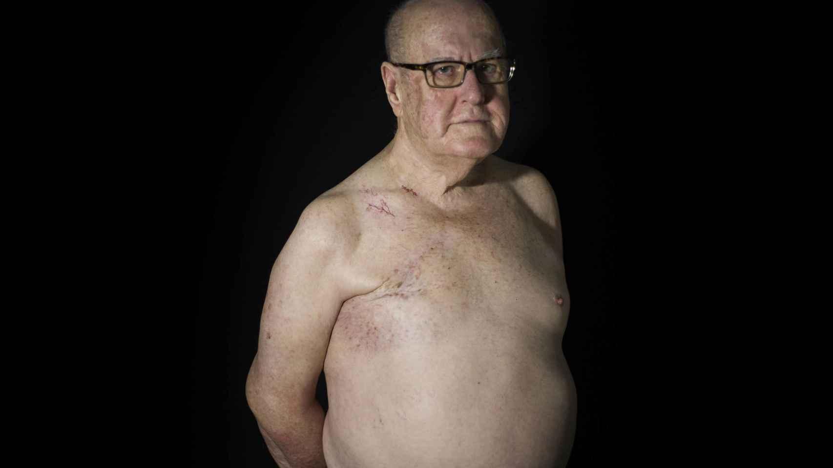Un 1% de los casos de cáncer de mama se dan en varones.