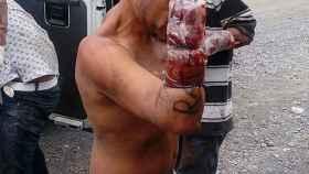 Una de las víctimas a las que les han amputado las manos, en la colonia Solidaridad del municipio de Tlaquepaque.