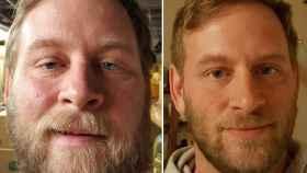 Imagen de Keith Urbowicz antes (probablemente ebrio) y después.