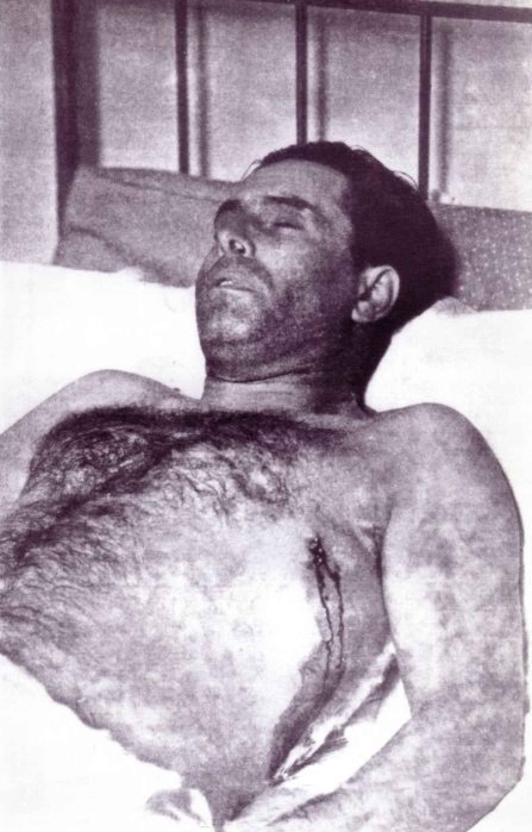 El cadáver de Durruti.