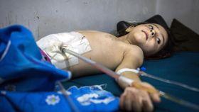 Un niño de 5 años, herido en el abdomen por la metralla de un bombardeo sobre el este de Alepo.