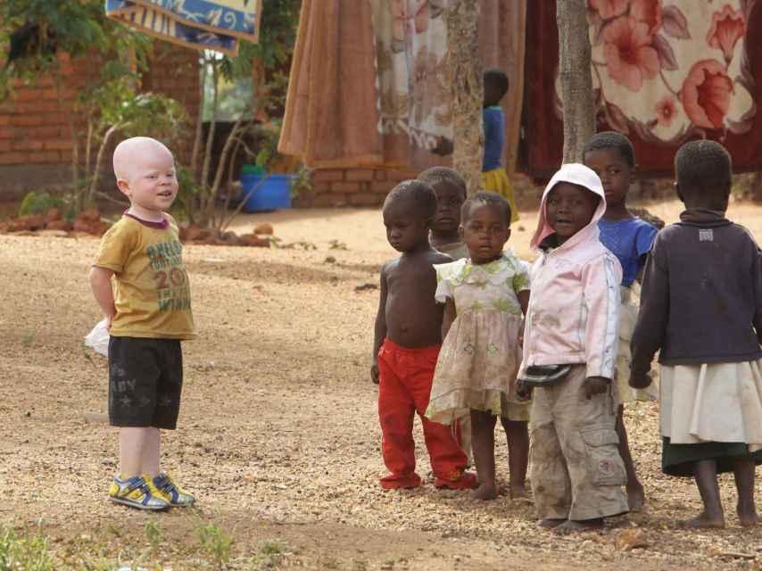 Un niño albino en África.