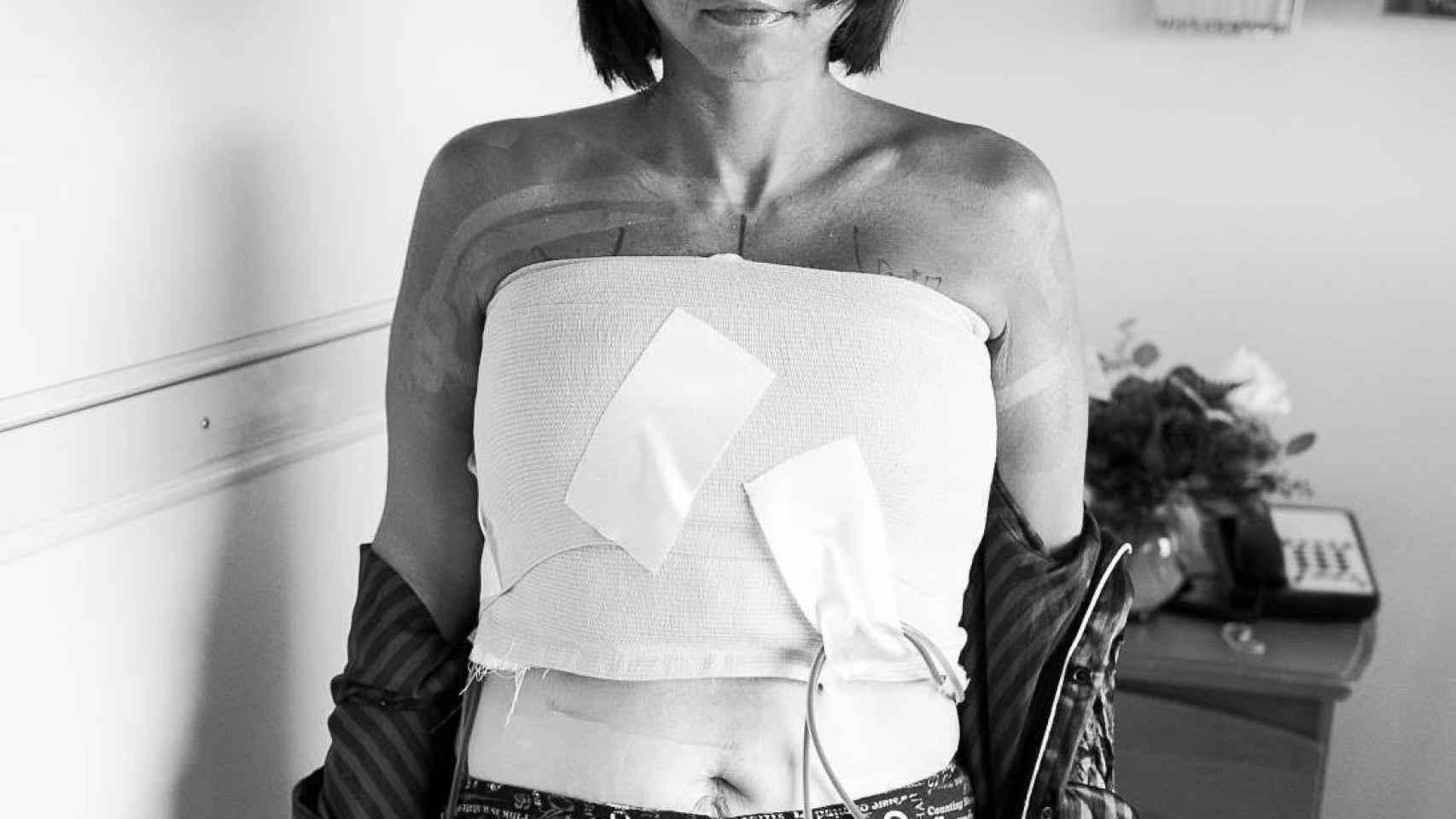 Anne Marie, trabajadora de Wisdo y superviviente de cáncer de mama