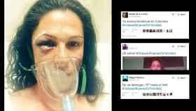 La imagen tras la agresión que subió Ana Guevara; a la derecha, los tuits que la ridiculizan.
