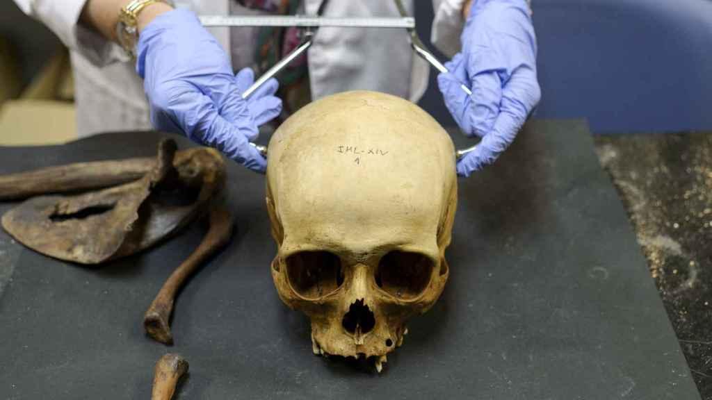 Los forenses estudian el cráneo del cadáver para averiguar datos sobre la persona fallecida como la raza.