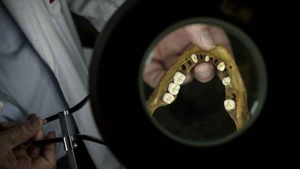 La dentadura también aporta detalles relevantes, como ortodoncias con materiales específicas de una zona determinada, que ayudan a identificar la identidad.