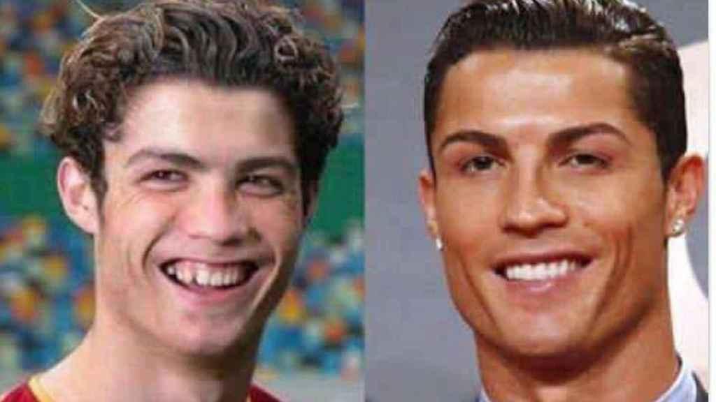 Cristiano, antes y después.