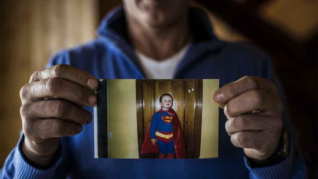 Su padre Ángel muestra una fotografía de cuando su hijo aún no había sufrido de sinusitis