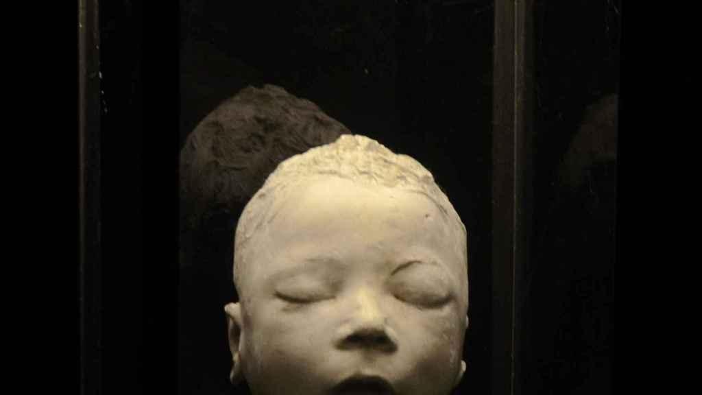 Rostro de un niño estrangulado por su padre.