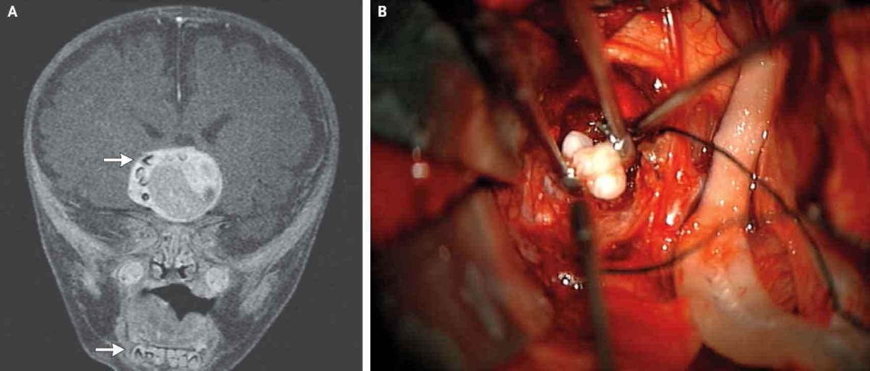 Un craneofaringioma en el cerebro.