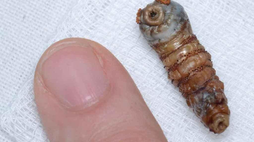 Una de las larvas hallada dentro del cerebro.