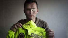 Juan, expolicía, perdió un ojo tras ser herido por un integrante del clan de Los Cachimbas.