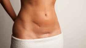 El síndrome de ovario poliquístico puede tardar en diagnosticarse