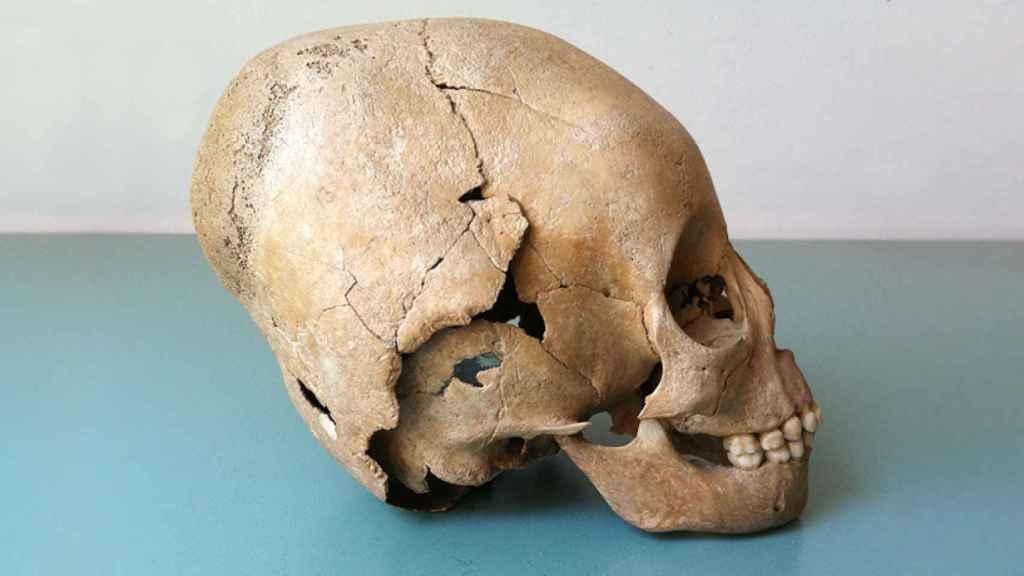 La práctica de la unión de las cabezas de los niños para alargar el cráneo se cree que se originó entre los hunos nómadas.