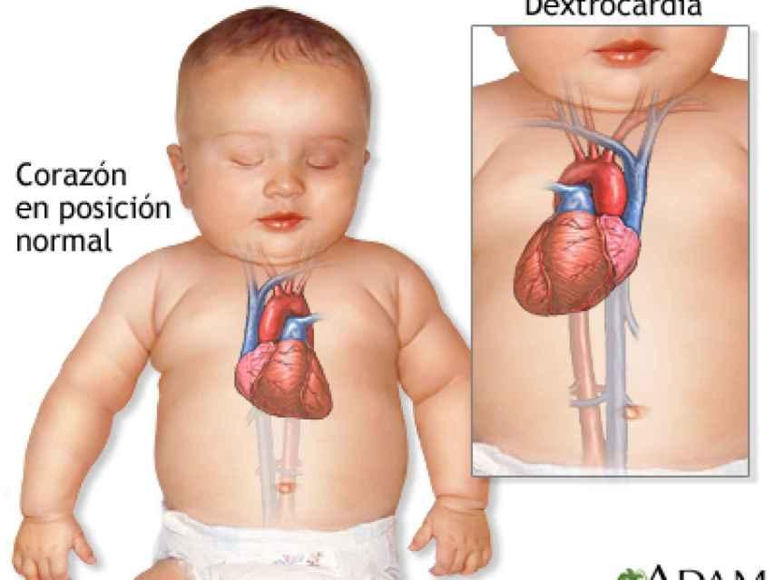 Explicación visual de la dextrocardia.
